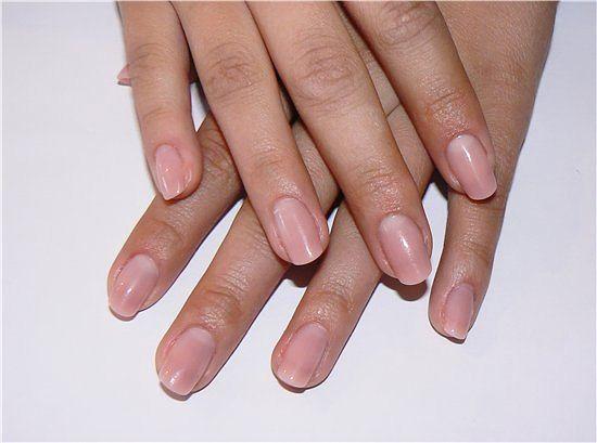Лечение микоза ногтей ног лазером