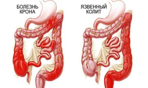 35 недель беременности болит поясница справа