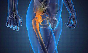 artroz-kolennogo-sustava1